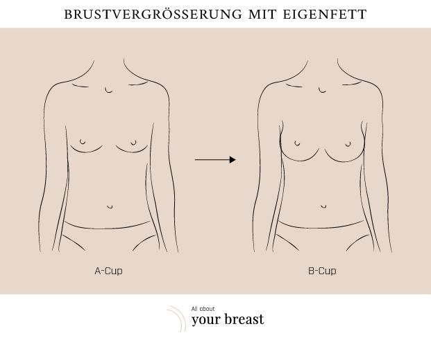 Brustvergrößerung von b auf d bilder